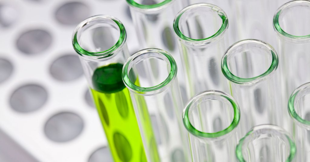 Test tubes in a medical laboratory,